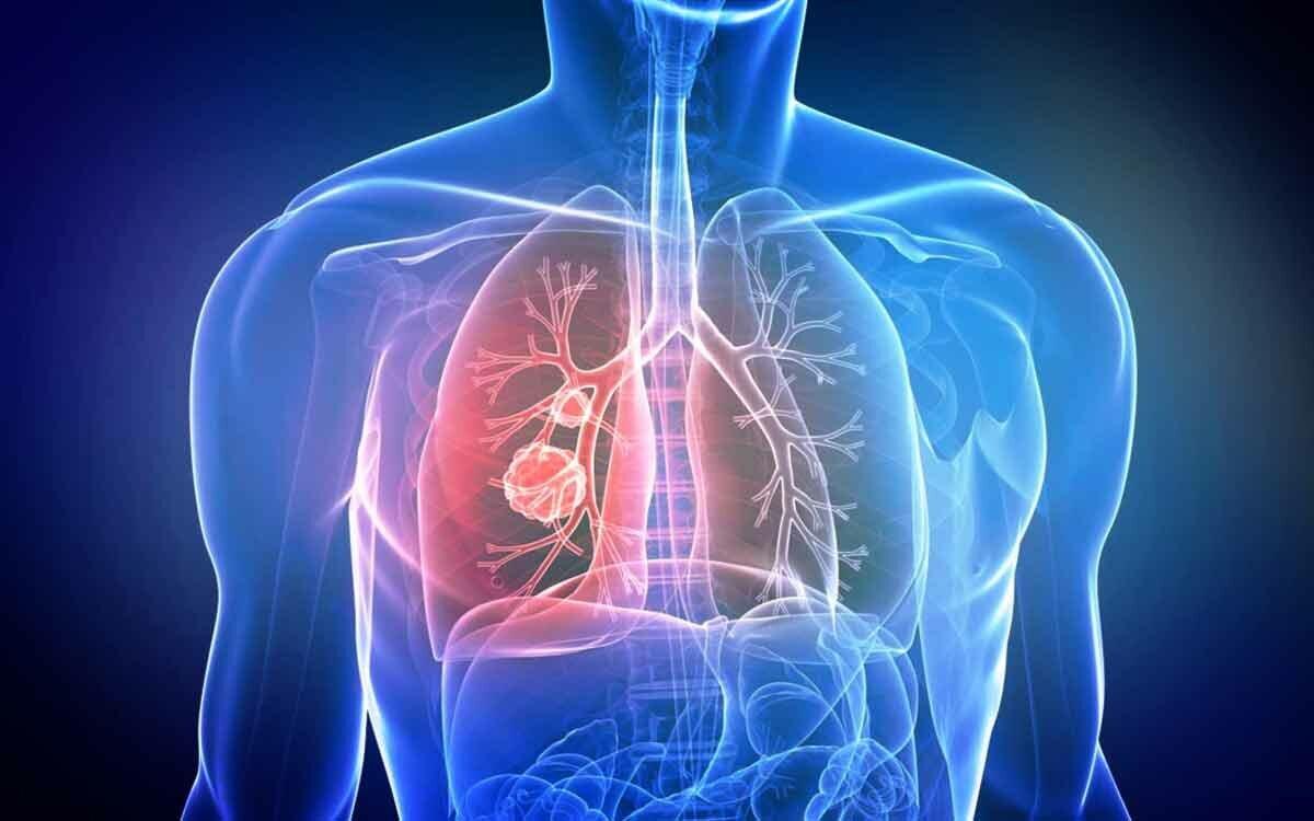 Ученые обнаружили необычные признаки рака легких