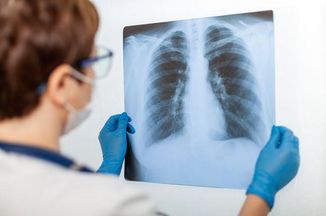 Онкологи назвали пять неожиданных симптомов рака легких